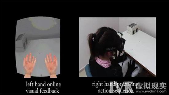 研究:科研人员利用 VR 进行的一项实验将助推医学理疗